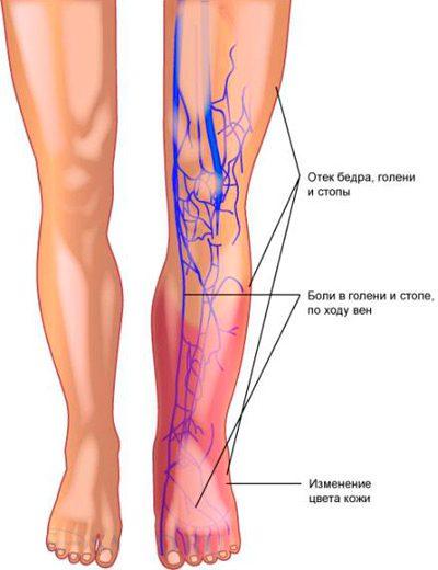 Тромбофлебит нижних конечностей и тромбоэмболия легочной артерии