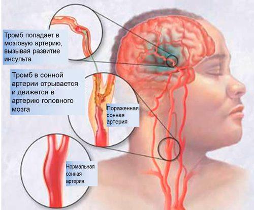 Атеросклеротическое поражение магистральных артерий головы ...
