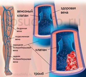 Артерии сужены вены расширены глазное дно
