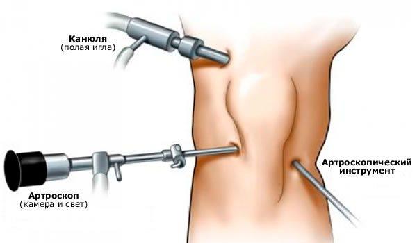 Разрыв мениска коленного сустава осложнения осложнения при пункции коленного сустава