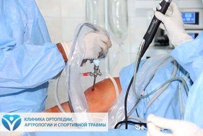 Микрохирургия суставов для смазки суставов таблетки