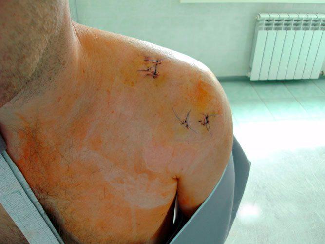 при жимах лёжа травмировал левый плечевой сустав что делать