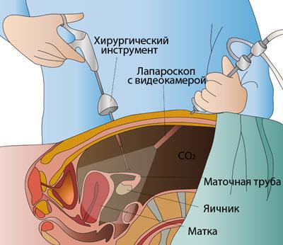 Фото работы гинекологов фото 453-357